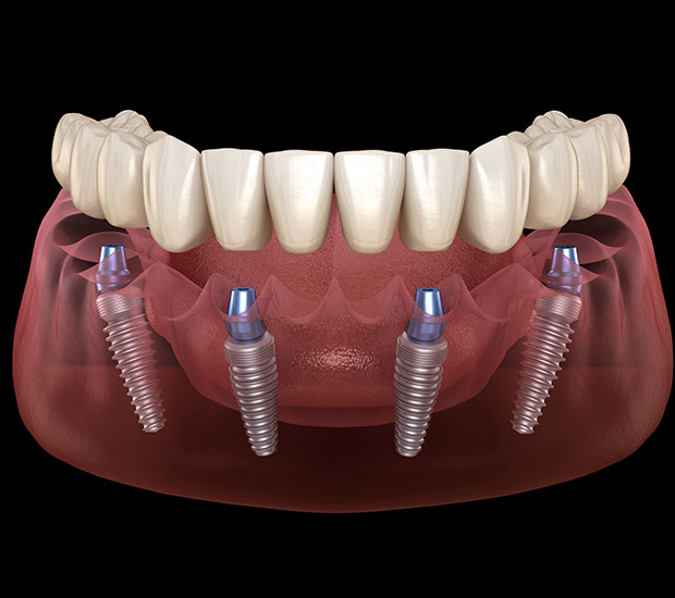 Stoughton Implant Supported Dentures